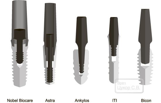 Виды абатментов для имплантов